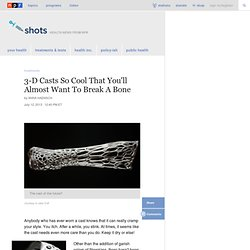 3-D Casts So Cool That You'll Almost Want To Break A Bone : Shots - Health News