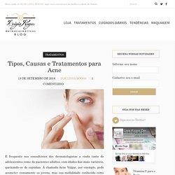 Causas da Acne, tipos e tratamentos