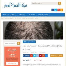 Hair Loss Causes - Diseases and Conditions [Male & Female]