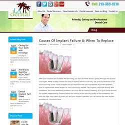 Causes of Implant Failure and When to Replace - LA Dental Clinic