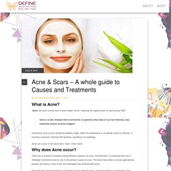 Acne & Scars – A whole guide to Causes and Treatments