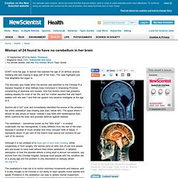 Woman of 24 found to have no cerebellum in her brain - health - 10 September 2014