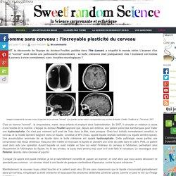 L'homme sans cerveau : l'incroyable plasticité du cerveau ~ Sweet Random Science