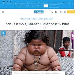 Inde : à 8 mois, Chahat Kumar pèse 17 kilos - Le Parisien