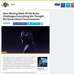 Man Missing Most Of His Brain Challenges Everything We Thought We Knew About Consciousness