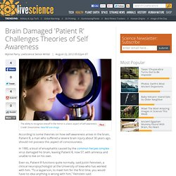 Brain Damaged 'Patient R' Challenges Theories of Self Awareness
