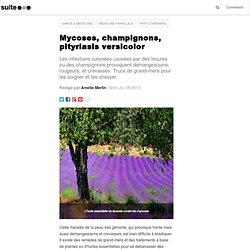 Mycoses, champignons, pityriasis versicolor: Des remèdes naturels à base de plantes pour prévenir et guérir