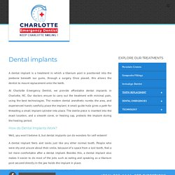 Affordable Dental Implants in Charlotte NC