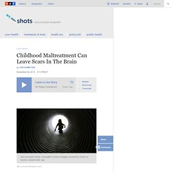 Childhood Maltreatment Can Leave Scars In The Brain