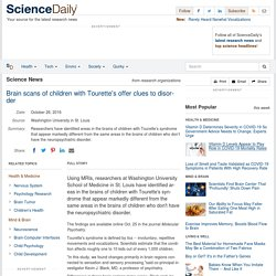 Brain scans of children with Tourette's offer clues to disorder