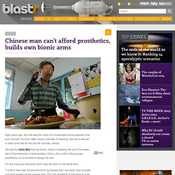 Chinese man can't afford prosthetics, builds own bionic arms