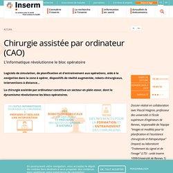 Chirurgie assistée par ordinateur (CAO)