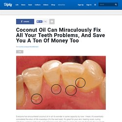 Coconut Oil Can Miraculously Fix All Your Teeth Problems, And Save You A Ton Of Money Too