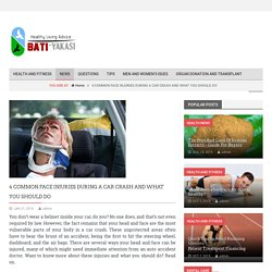 4 COMMON FACE INJURIES DURING A CAR CRASH AND WHAT YOU SHOULD DO