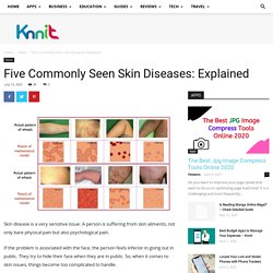 Five Commonly Seen Skin Diseases: Explained