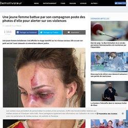 Une jeune femme battue par son compagnon poste des photos d'elle pour alerter sur ces violences