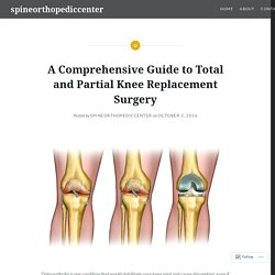 A Comprehensive Guide to Total and Partial Knee Replacement Surgery – spineorthopediccenter