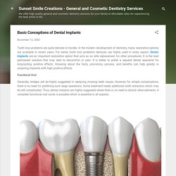 Basic Conceptions of Dental Implants
