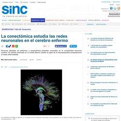 La conectómica estudia las redes neuronales en el cerebro enfermo