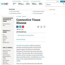 Connective Tissue Disease: Types, Symptoms, Causes