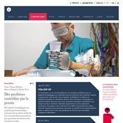 Des prothèses contrôlées par la pensée - Innovation - Corpore Sano - InVivo