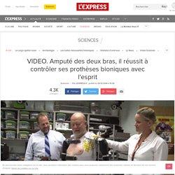 VIDEO. Amputé des deux bras, il réussit à contrôler ses prothèses bioniques avec l'esprit