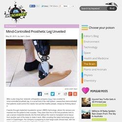 Mind-Controlled Prosthetic Leg Unveiled