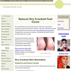 Dry Cracked Feet Home Remedies