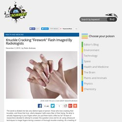 """Knuckle Cracking """"Firework"""" Flash Imaged By Radiologists"""