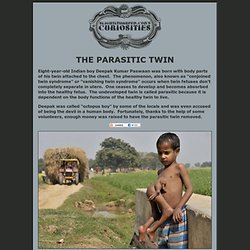 The Parasitic Twin