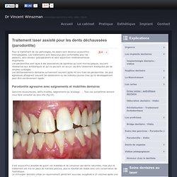 Traitement laser assisté pour les dents déchaussées (parodontite) Paris 19ème (75019) | Dentiste Dr Vincent Winszman