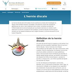 Hernie Discale : définitions, causes, symptomes