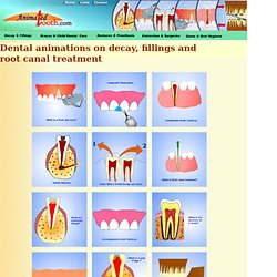 Dental animations