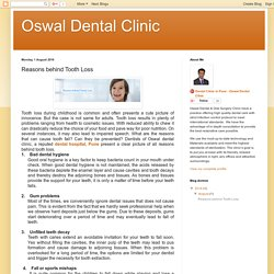 Oswal Dental Clinic : Reasons behind Tooth Loss