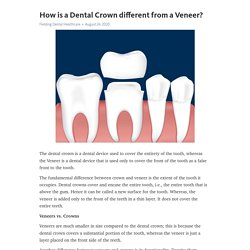 How is a Dental Crown different from a Veneer?