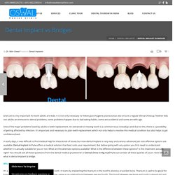 Dental Implant vs Bridges - Oswal Dental Clinic