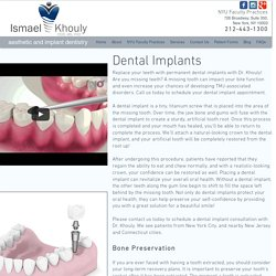 Dental Implant in NYC, Manhattan, Soho & More - Dr Ismael Khouly