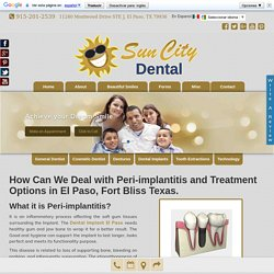 Dental Implants EL Paso - How Can We Deal with Peri-implantitis?