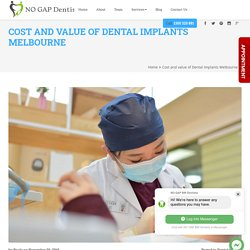 Cost and value of Dental Implants Melbourne