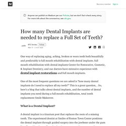 How many Dental Implants are needed to replace a Full Set of Teeth?