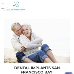 Dental Implants San Francisco Bay