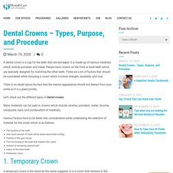 Dental Crowns - Types, Purpose, and Procedure - A Dental Care