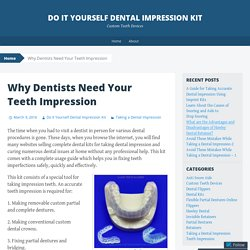 Why Dentists Need Your Teeth Impression