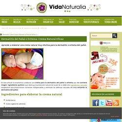 Dermatitis del Pañal o Eritema: Crema Natural Eficaz
