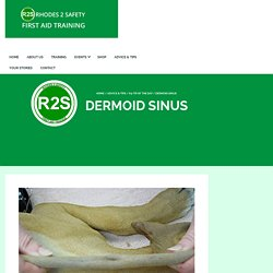Dermoid Sinus - Rhodes 2 Safety