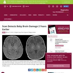 Determining the Likelihood of Long-term Brain Damage in Newborns