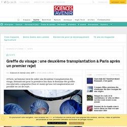 Greffe du visage : une deuxième transplantation à Paris après un premier rejet