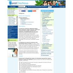 Cancer de l'estomac - Causes, Symptômes, Diagnostic,Traitement - Tabagisme