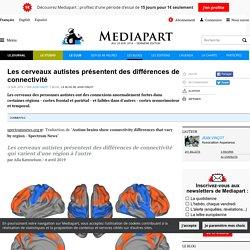 Les cerveaux autistes présentent des différences de connectivité