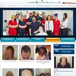 Haartransplantation Ergebnisse